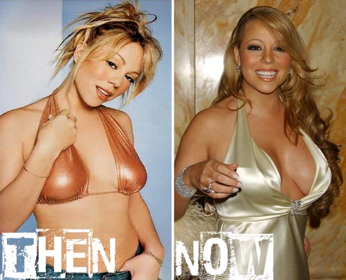 Celebrity-Mariah-Carey-Breast-Implants