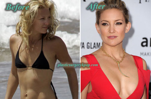 Kate-Hudson-Plastic-Surgery-Boob-Job