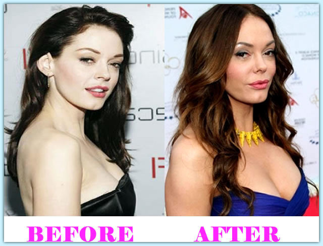 Rose-McGowan-Plastic-Surgery-Before-and-After-Pictures3