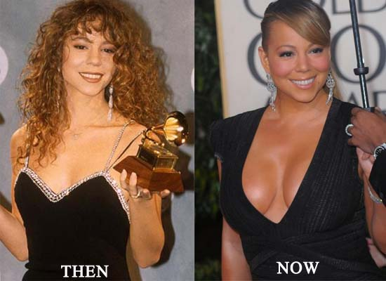 mariah-carey-breast-implants