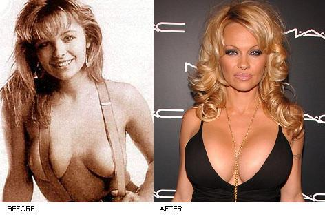 pamela-anderson-breast-implants