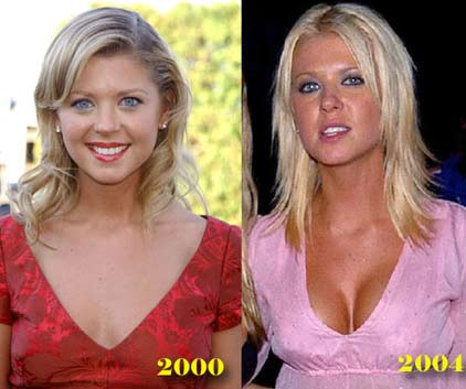 tara-reid-awful-plastic-surgery