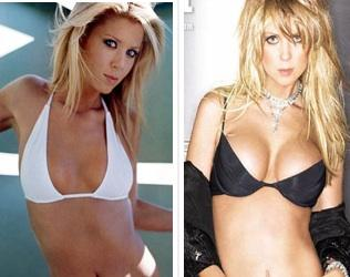 tara-reid-before-and-after